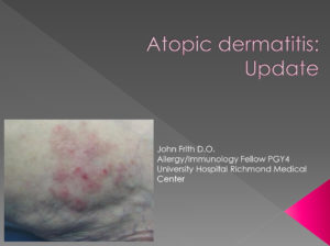 Atopic Dermatitis: Update